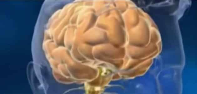 صورة علاج ضمور الدماغ , ما هو العلاج لتلف المخ