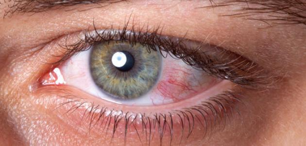 صورة علاج ضغط العين المرتفع , ما هو العلاج المناسب لضغط العين المرتفع
