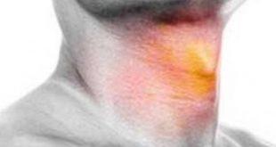 صورة سرطان الحنجرة اعراضه , سرطان صندوق الصوت