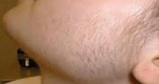 ليزر ازالة شعر الوجه , كيفيه ازاله شعر الوجه بالليزر