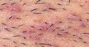 التهاب بصيلات الشعر , اعراض التهاب بصيلات الشعر وكيفيه علاجها