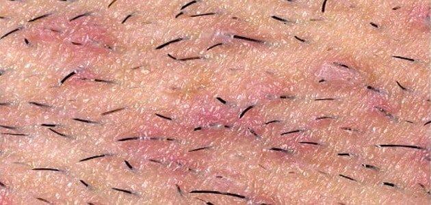 صورة التهاب بصيلات الشعر , اعراض التهاب بصيلات الشعر وكيفيه علاجها