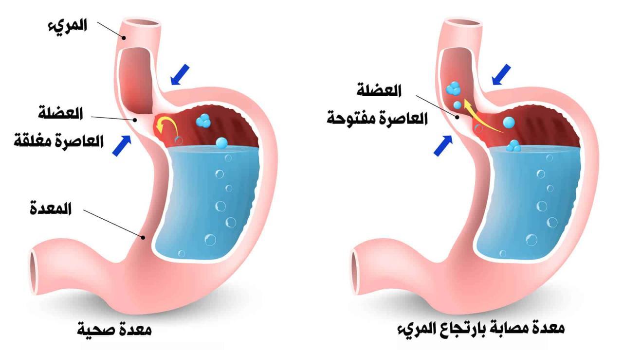 صورة علاج لتقوية عضلة المرئ , علاج ارتجاع المريء بالاعشاب