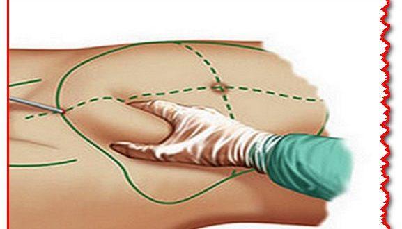 صورة عملية شفط الدهون , تجنبي شفط الدهون بالعمليات الجراحيه