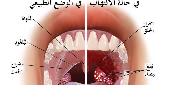 صورة علاج التهاب الحلق والزكام , العلاج والوقايه من نزلات البرد