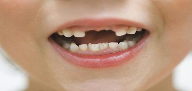 صور حلم الاسنان تتحرك , حلمت ان اسناني تهتز