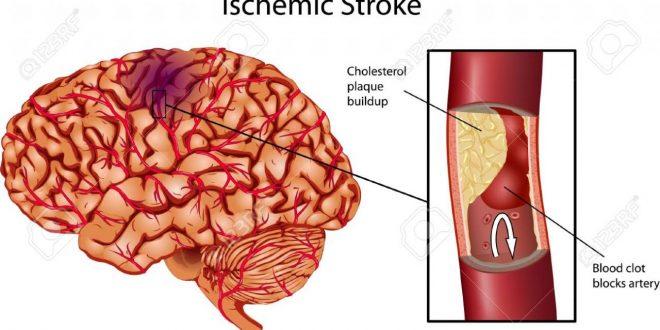صورة علاج السكتة الدماغية , السكته الدماغيه الوقايه منها وعلاجها