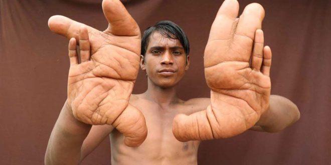 صورة اكبر يد في العالم , اكبر كف يد في العالم يمتلكه جيب ديب