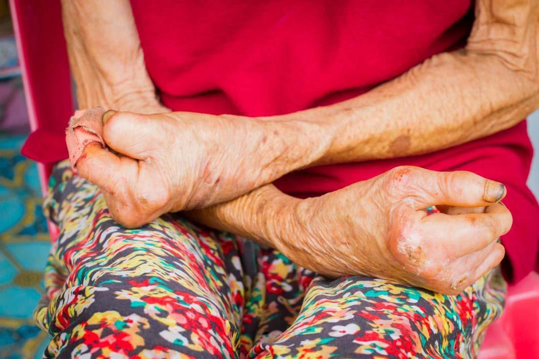صورة مرض الجذام هل هو معدي , هل الجذام معدى وكيفية علاجه