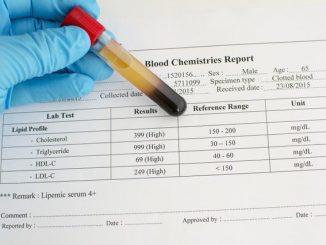 صورة نسبة الدم الطبيعية للمراة , المعدل الطبيعي للدم في جسم المراه