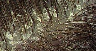 صور سبب قشرة الراس , ايه هي الاسباب الاساسيه لقشره الراس