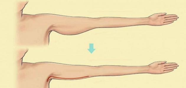 صورة تمارين لشد اليدين , تعرف على تمارين سهلة وبسيطة لشد وتنشيط اليدين