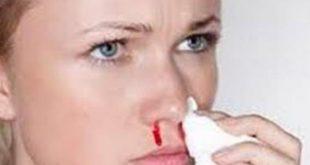 نزول دم من الانف من علامات الحمل , ماهى علاقة نزول دم من الانف بالحمل