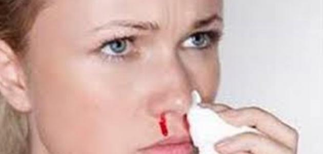 صورة نزول دم من الانف من علامات الحمل , ماهى علاقة نزول دم من الانف بالحمل