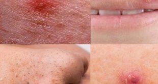 انواع حبوب الوجه بالصور , الحبوب تحت الجلد