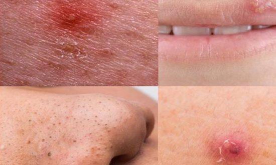 صور انواع حبوب الوجه بالصور , الحبوب تحت الجلد