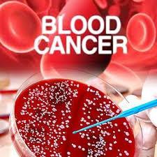 صورة اعراض امراض الدم , اشعر بان مصاب باحد امرض بالدم