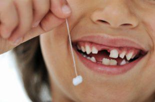 صورة الاسنان في الحلم , تفسير رؤية الاسنان