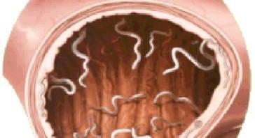 صورة علاج ديدان البطن البيضاء , الطريقة المثلى لعلاج الديدان البيضاء