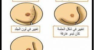 صورة ماهي اعراض مرض الثدي , كيف تتاكدى من سلامة ثديك
