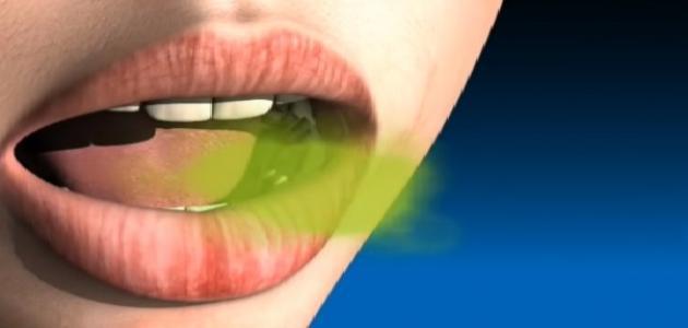 صورة علاج رائحة الفم الكريهة بالاعشاب الطبيعية , كيف تعطر فمك بالاعشاب لطبيعية