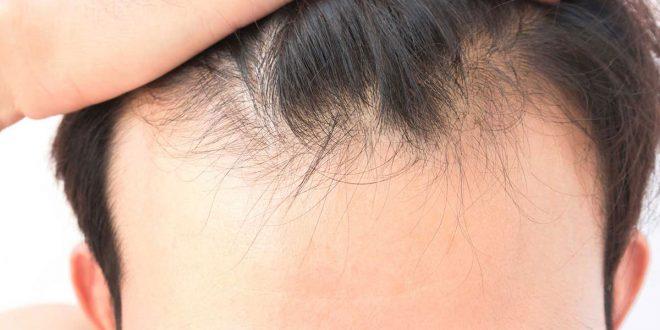 صورة افضل علاج لتساقط الشعر عند الرجال , شعرى المتساقط يسبب لي ازعاج