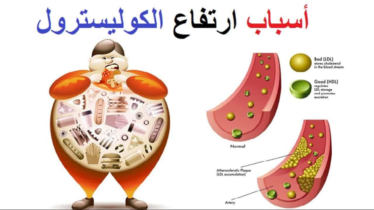 صورة ماهي اعراض ارتفاع الدهون الثلاثيه , بالشرح اعراض ارتفاع نسبه الدهون في الجسم