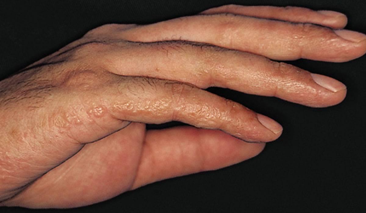 صورة حبوب صغيرة تحت الجلد في اليد , اسباب وعلاج حبوب اليد