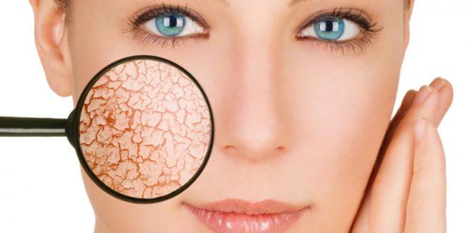 صورة علاج تقشر الوجه وجفافه , تخلصي من مشكله الجفاف في الشتاء