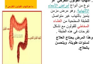 صورة اعراض التهاب القولون التقرحي , مرض المعده والتهاب القولون واعراضهم