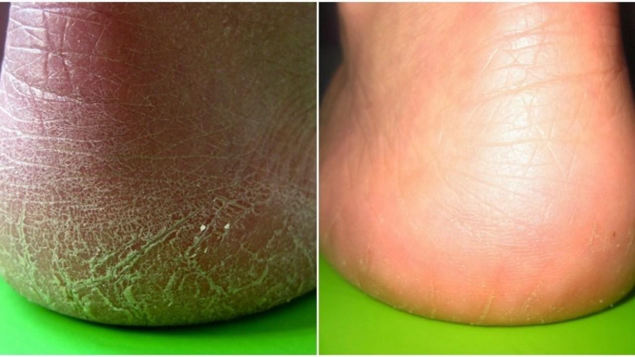 صورة علاج تشقق الجلد للرجال , تشقق الجلود عند الرجل 2612 2