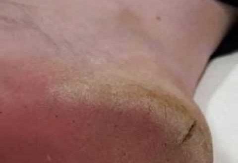 صورة تشقق الجلود عند الرجل , علاج تشقق الجلد للرجال