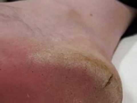 صورة علاج تشقق الجلد للرجال , تشقق الجلود عند الرجل 2612