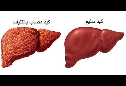 صورة ما هو تشمع الكبد , التليف الكبدي اسبابه وطرق العلاج