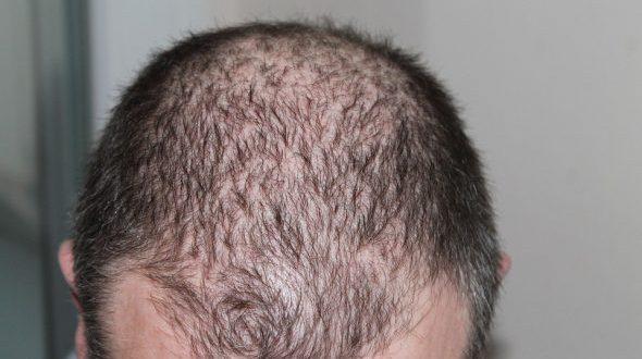 صورة انبات الشعر في الفراغات , تكثيف الشعر في مقدمة الراس