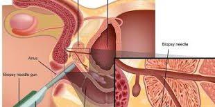 صورة اعراض تضخم البروستاتا الخبيث , اورام البروستاتا وكل ما يجب معرفته عنها