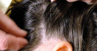 صورة كيف تأتي الحشرات للشعر وطرق علاجها , علاج قمل الشعر