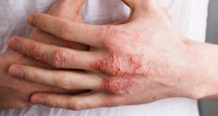 صورة مرض جلدي ناتج عن الالتهاب , اسباب ظهور الاكزيما
