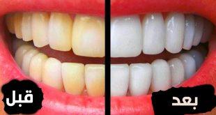 تبييض الاسنان طبيعيا